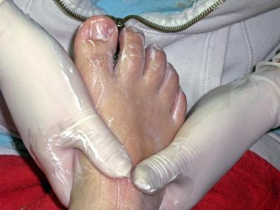 Behandlung beim Hautarzt